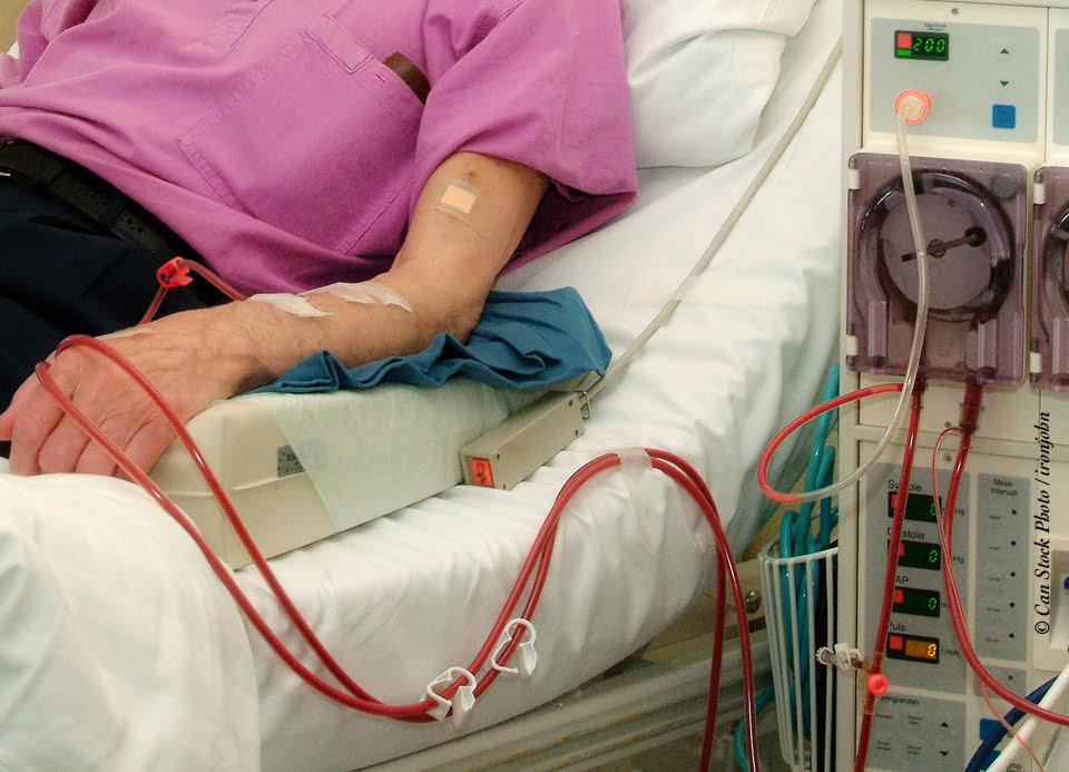hemodialyse